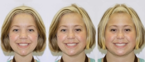 Kailee Composite